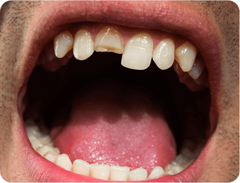 Close up of the mouth having Cracked Tooth