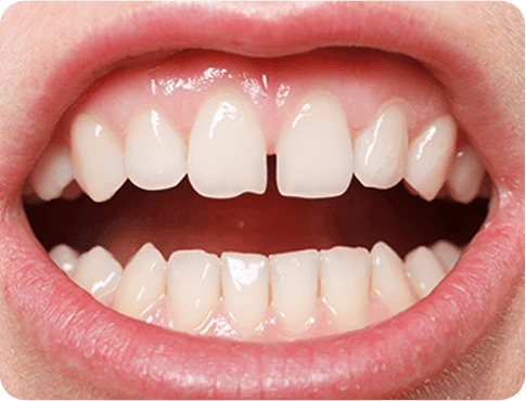 Close up of the mouth having Gaps between Teeth