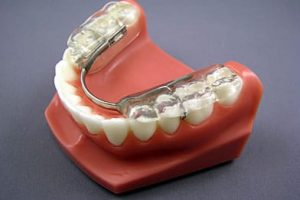 Model of Fake jaw with Gelb appliance