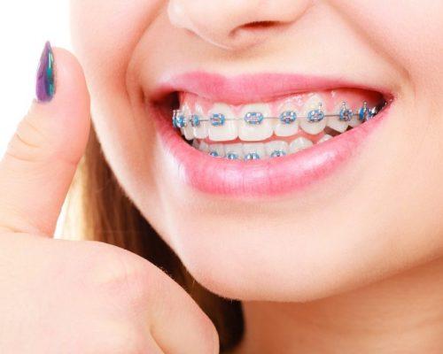 Orthodontics-London-Ontario-Rondeau-Associates-1200